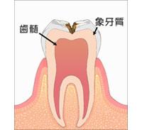 虫歯 C2
