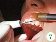 治療前に、歯の周りに付いている歯石などの汚れを落とします